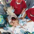 Dempet Dada dan Perut, Bayi Kembar Ini Berhasil Dipisahkan