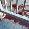 Sebelum Teror 'Darah', KJRI Sydney Sudah 2 Kali Diteror